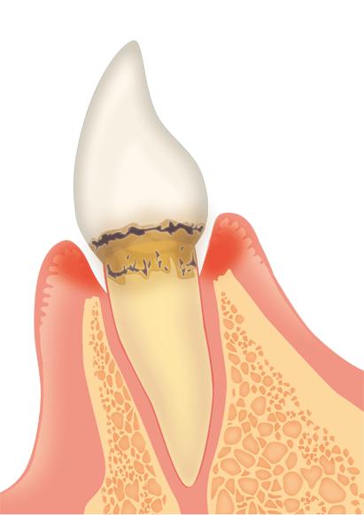 歯周病は全身の健康をも左右する